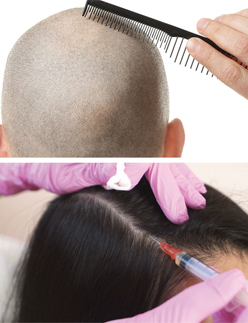 Hair Transplantation with Fue Technique